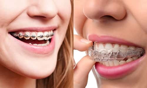 Clear-Aligners-vs.-Traditional-Braces-JC-Dental