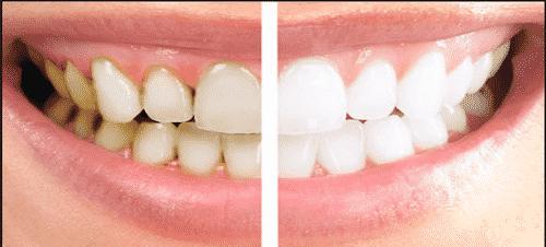 dental-scaling-and-polishing-500x500