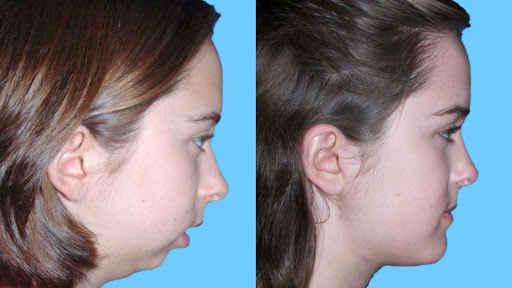 Jaw Deformity Surgeries