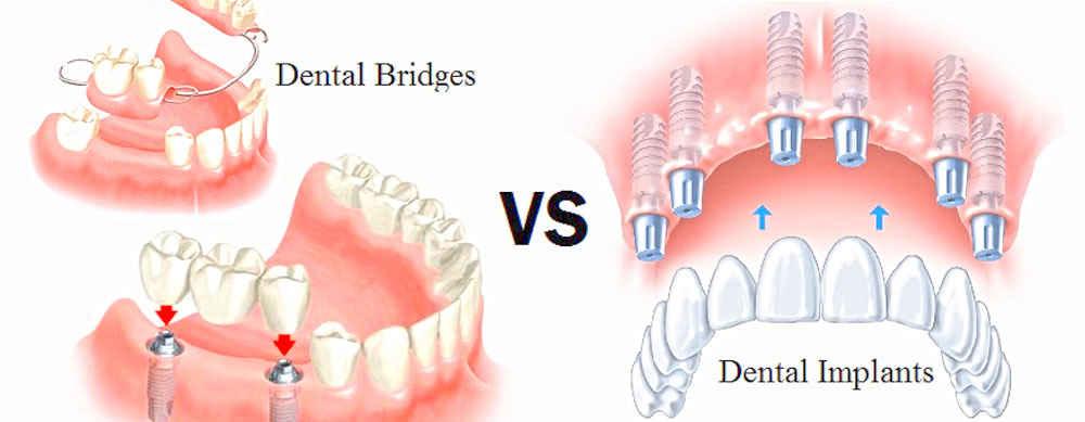 Implant, Bridge & Denture