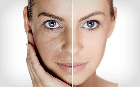facial-rejuvenation-service